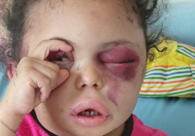 Ensarullah: Yemen Filistin'i ve Direnişi Desteklediği İçin Saldırıya Uğramaktadır